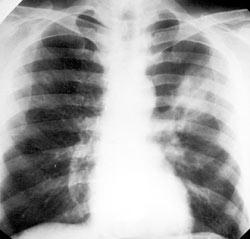 Синдром острой пневмонии