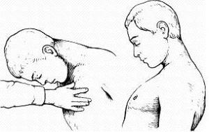 Общетоксический синдром. Сестринская помощь при нарушениях терморегуляции