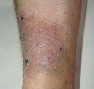 Синдром инфекционно-воспалительных и инфекционно-аллергических изменений кожи и слизистых оболочек