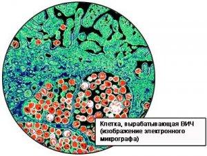 Социально-психологическая адаптация пациентов при ВИЧ-инфекции