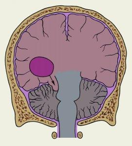 Поражение височных долей мозга