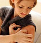 Атопический дерматит у взрослых